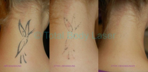 Steg for steg fjerning av tatovering med laser